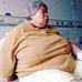 老人腹水严重被该怎么办?